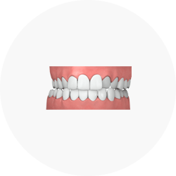 Illustration of Crossbite Credit: Invisalign Singapore
