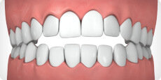 Illustration of Open Bite Credit: Invisalign