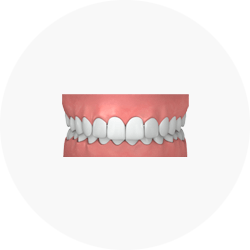 Overbite - Credit Invisalign Singapore
