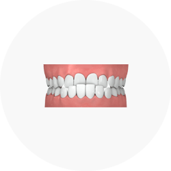 Ilustration of Underbite Credit: Invisalign Singapore