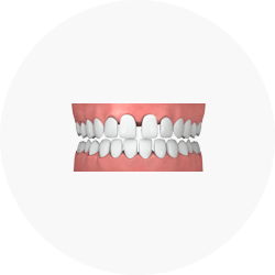 Illustration of Gapped Teeth Credit: Invisalign Singapore