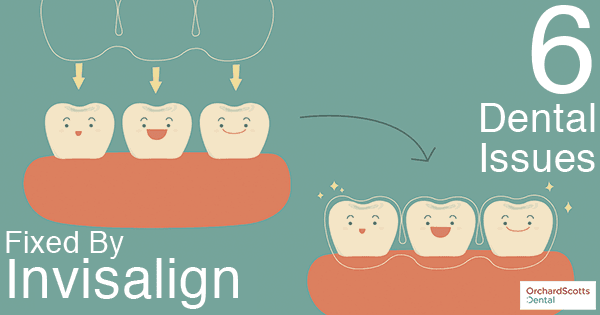 6-dental-issues-fixed-by-invisalign