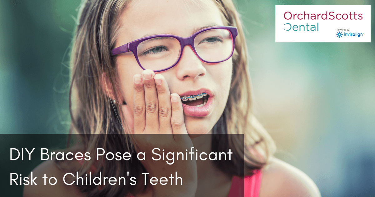 DIY Braces Pose a Significant Risk to Children's Teeth
