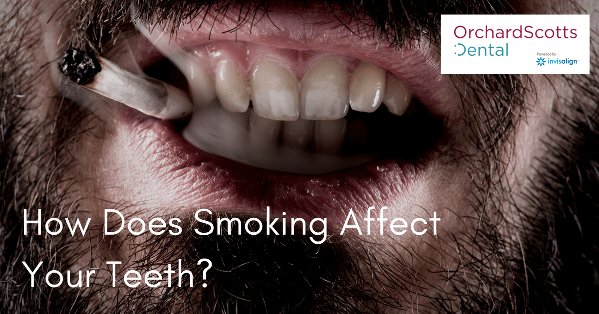 how-does-smoking-affect-your-teeth