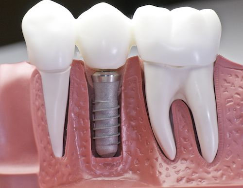 How to Get Beautiful, Straight Teeth with Dental Implants