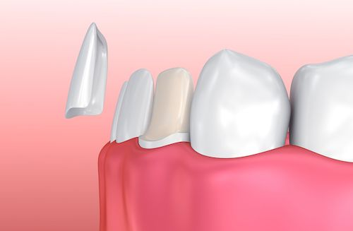 How to Get Beautiful, Straight Teeth with Porcelain Veneers