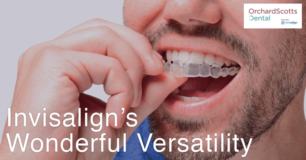 invisaligns-wonderful-versatility