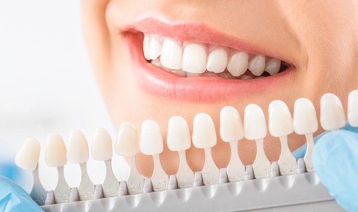 The High-Tech Technologies Giving you a Beautiful Smile