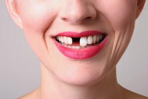 dental-implant-singapore-something-missing-in-smile