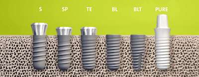 straumann-dental-implants