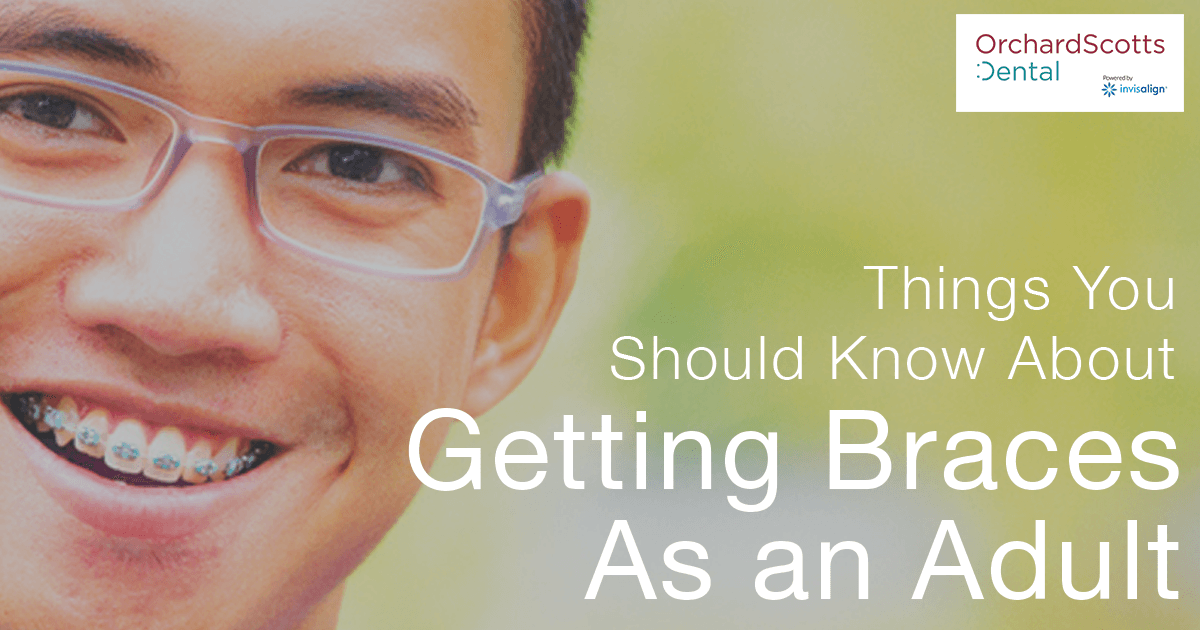 Things You Should Know About Getting Braces as an Adult