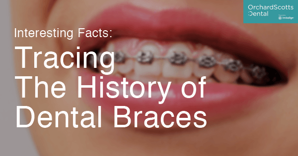 Tracing The History of Dental Braces