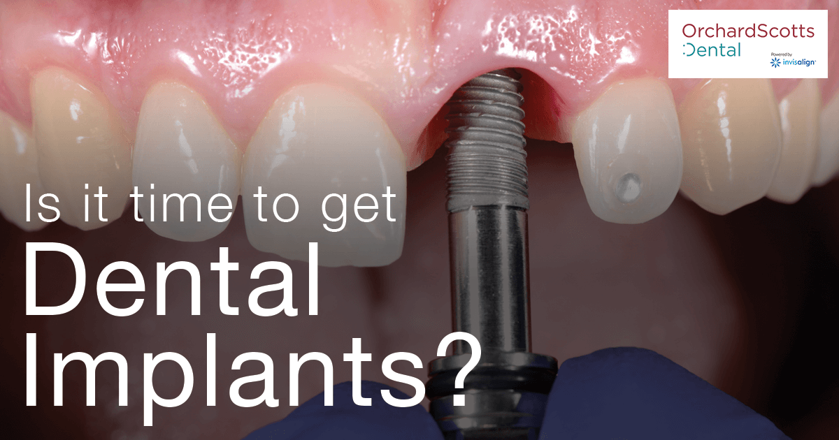 Is It Time To Get Dental Implants