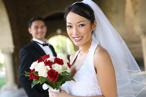 Smile Makeover Wedding Package