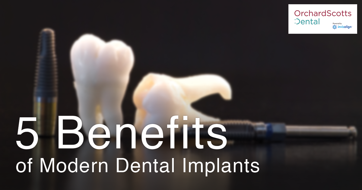 5 Benefits of Modern Dental Implants