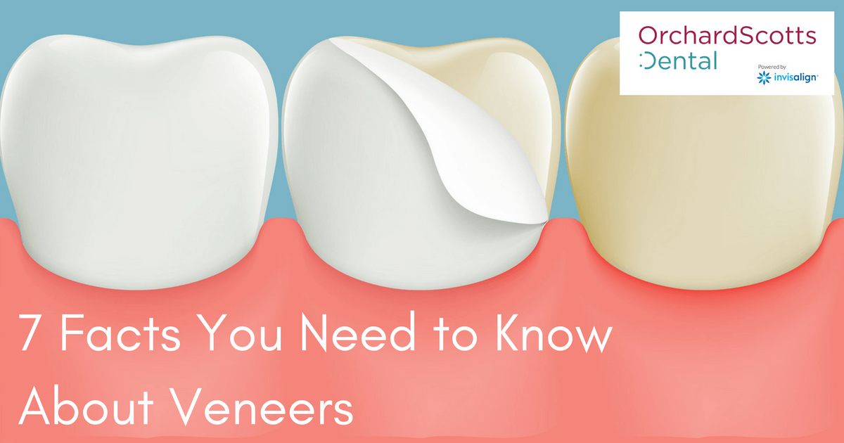 7 Facts You Need to Know About Veneers