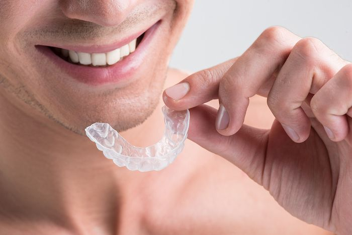 7 things about invisalign before you start treatment convenience