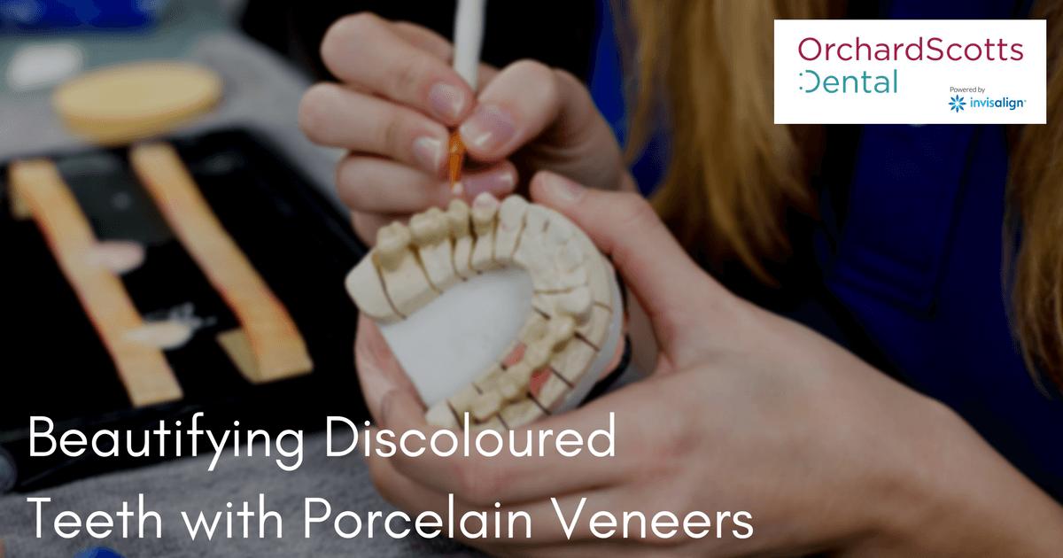 beautifying-discoloured-teeth-with-porcelain-veneers