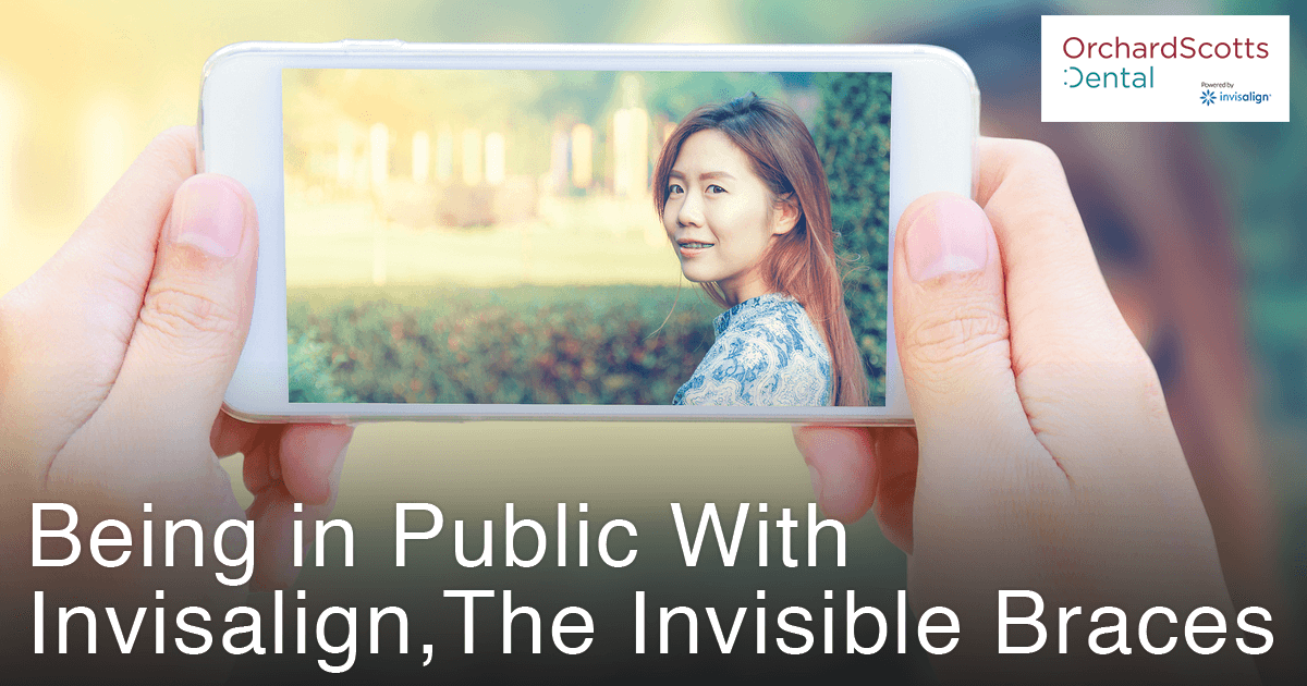 being-in-public-with-invisalign-the-invisible-braces
