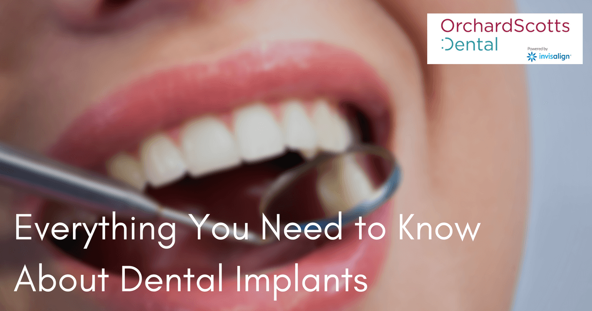everything-you-need-to-know-about-dental-implants