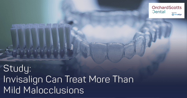Study-Confirms-Invisalign-Can-Treat-More-Than-Mild-Malocclusions