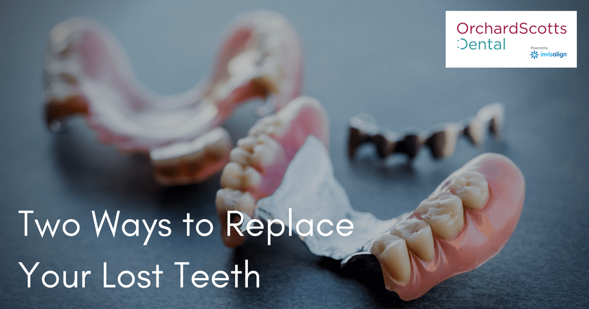 two-ways-to-replace-your-lost-teeth