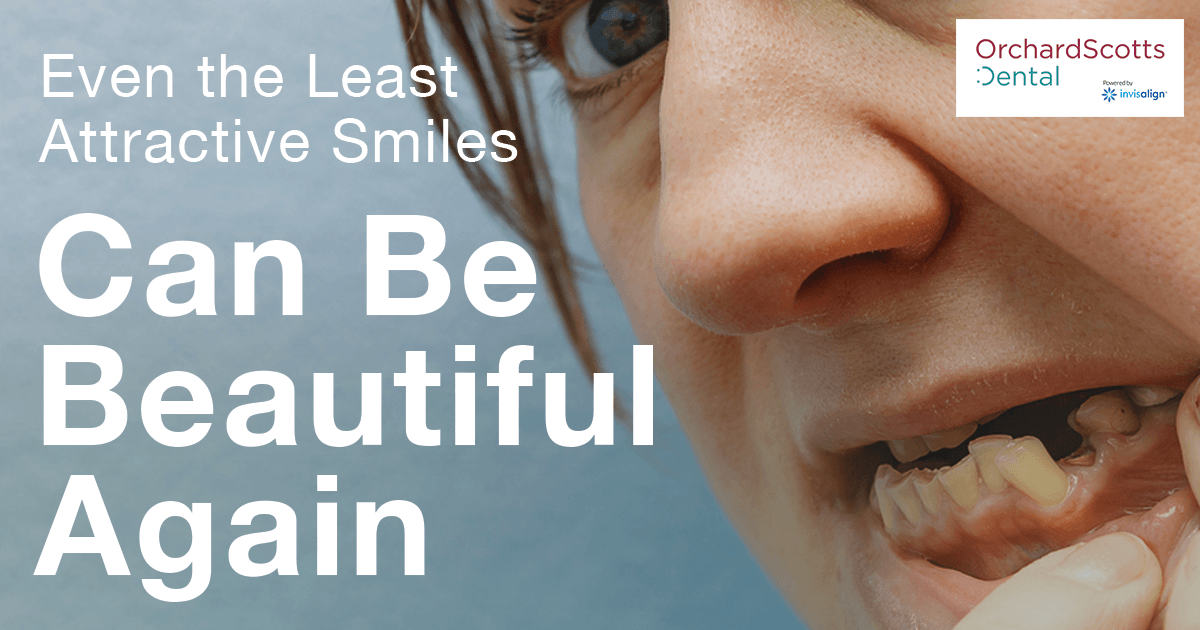 Even the least attractive smiles can be beautiful again