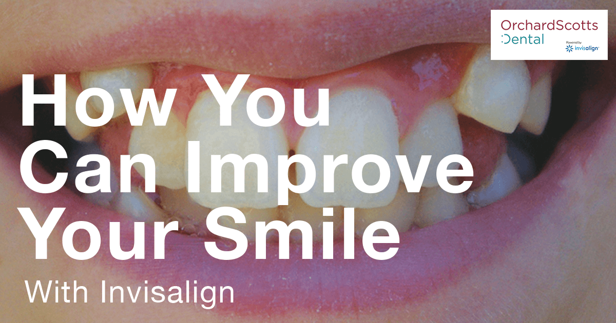How You Can Improve Your Smile with Invisalign