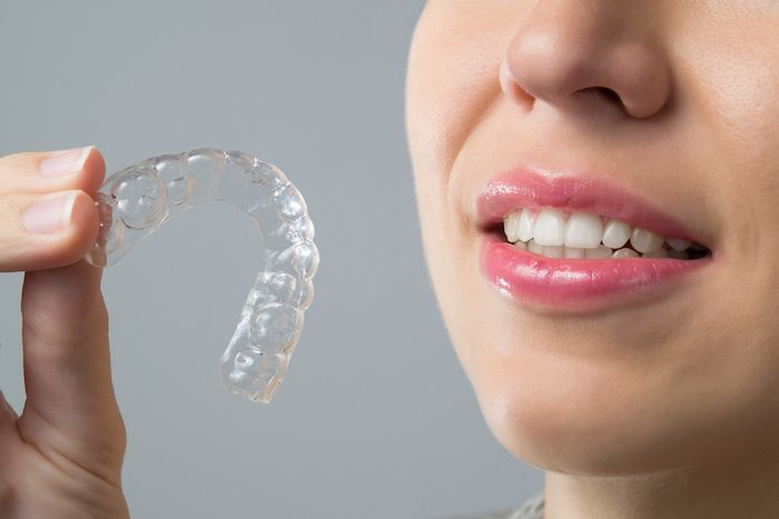 Modern Cosmetic Dentistry Procedures That Give You More Than a Pretty Smile - Alignment