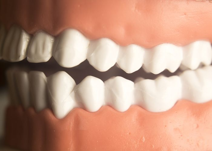 Modern Cosmetic Dentistry Procedures That Give You More Than a Pretty Smile - Gummy Recontouring For Gummy Smile