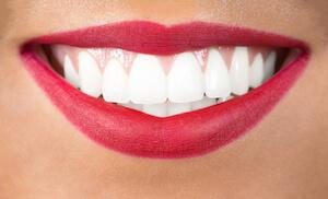 ABC of Smile Makeover - B for Brightness